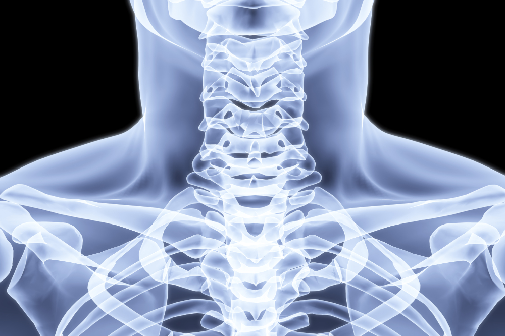 chiropractic thoracic outlet syndrome