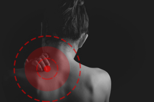 chiropractic myofascial pain syndrome